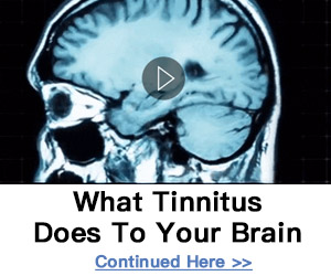 tinnitus3002501